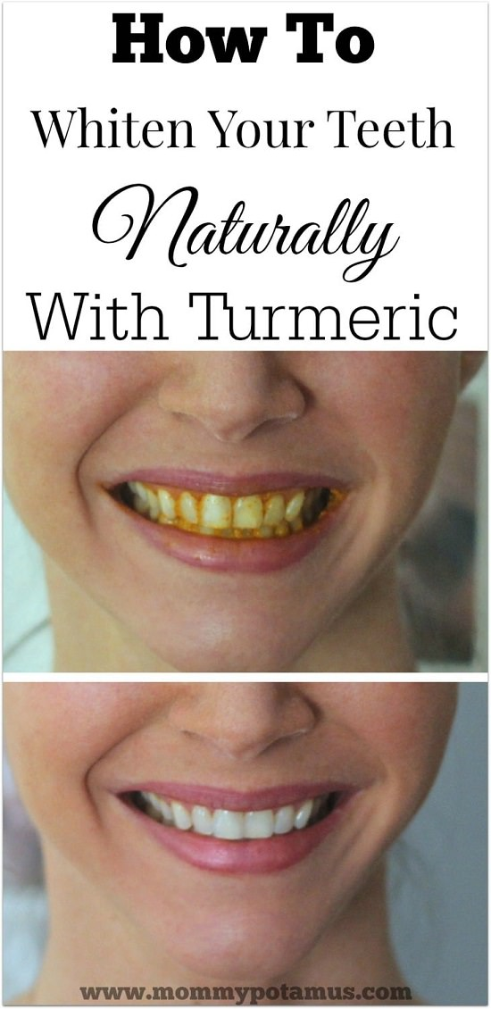 All Natural Teeth Whitener Recipes 4
