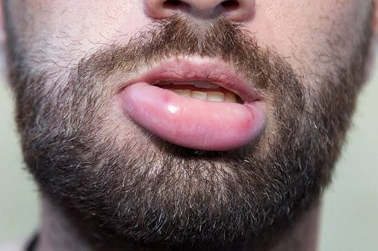How to get rid of a fat lip1