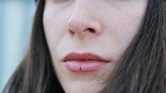 Chapped Lips