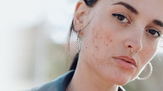Fights Acne