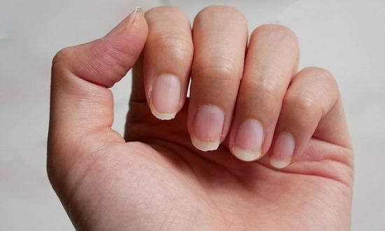Treats Brittle Nails