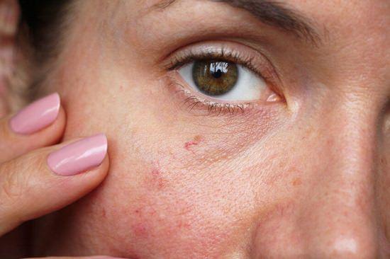 Castor Oil For Spider Veins On The Face1