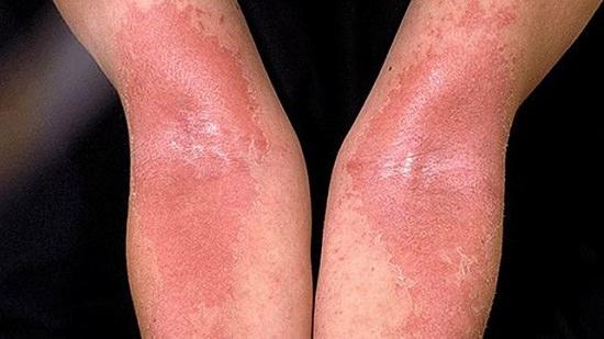 Cinnamon Body Scrub Benefits2