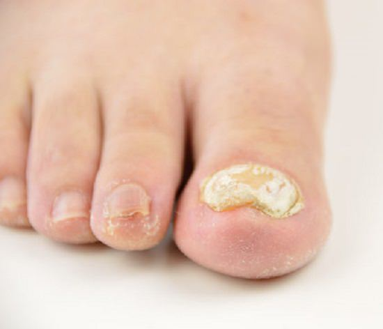 Coconut Oil for Toenail Fungus3