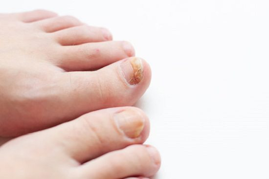 Coconut Oil for Toenail Fungus1